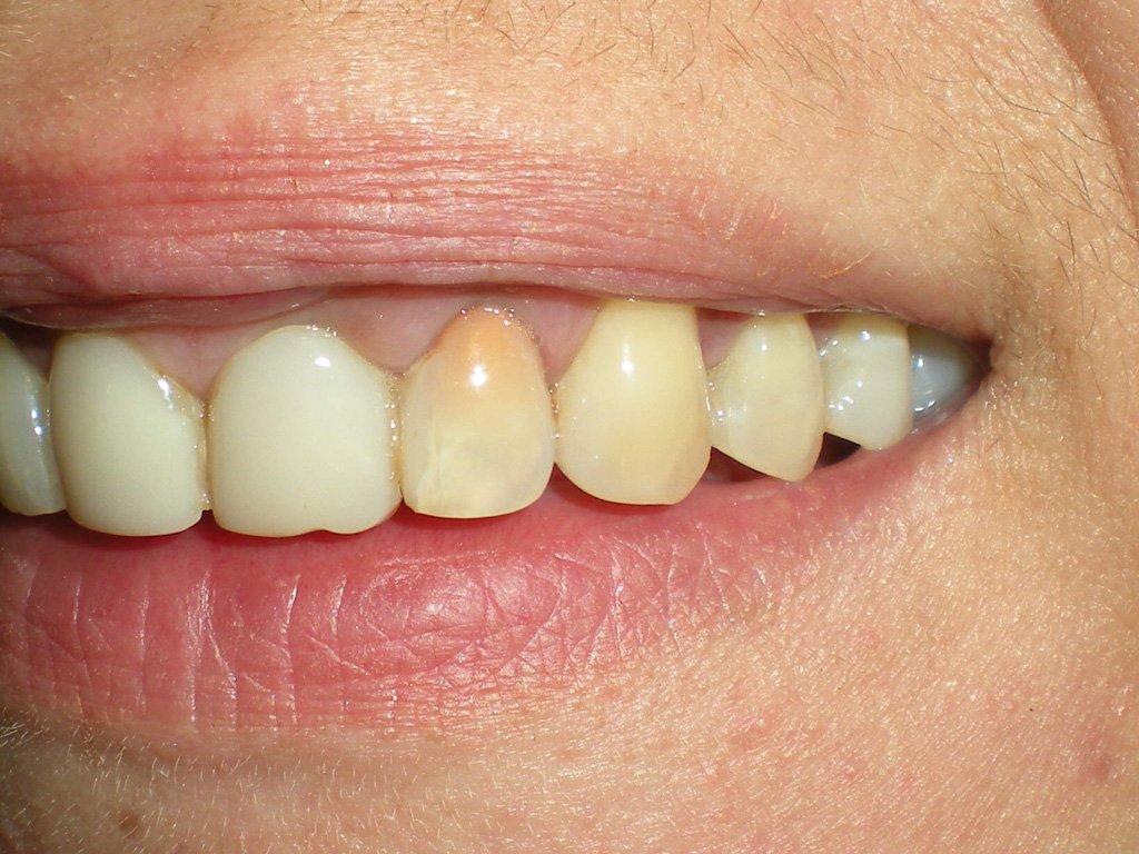 Отбеливание канала зуба