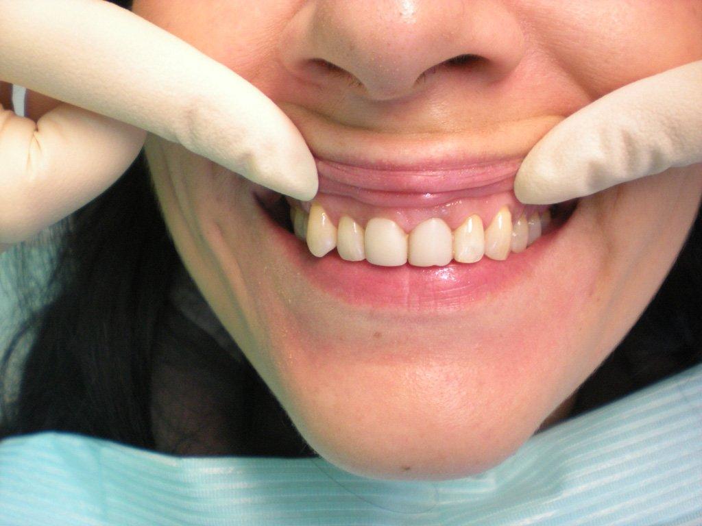 Запломбировать зуб домашних условиях